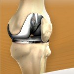 knee-replacement-image